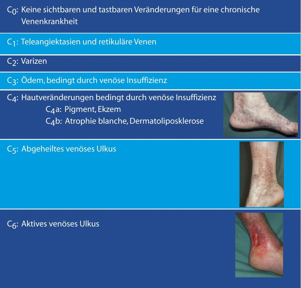 Gemütlich Venenanatomie Untere Extremität Ultraschall Bilder ...