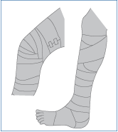 3.1_Kompressionosverbaende_01