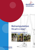 pub-beinamputation